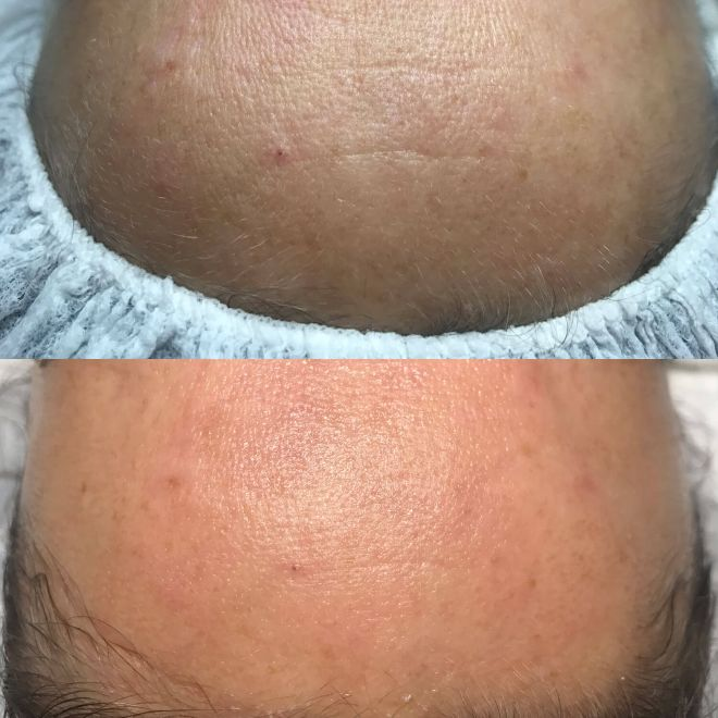 kosmetik-studio-bremen-cv-gesichtsbehandlung